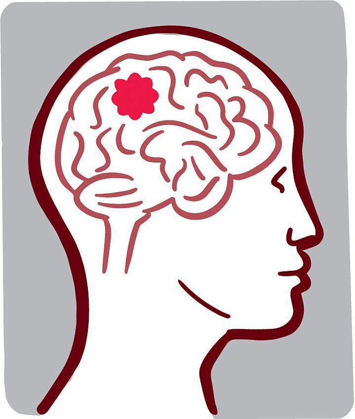 Illustration of a brain tumor.