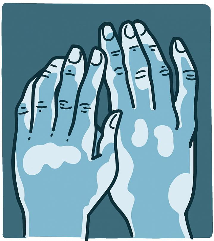 Illustration of hands with patches of vitiligo